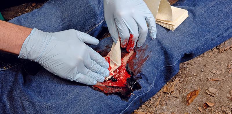 Catastrophic bleed